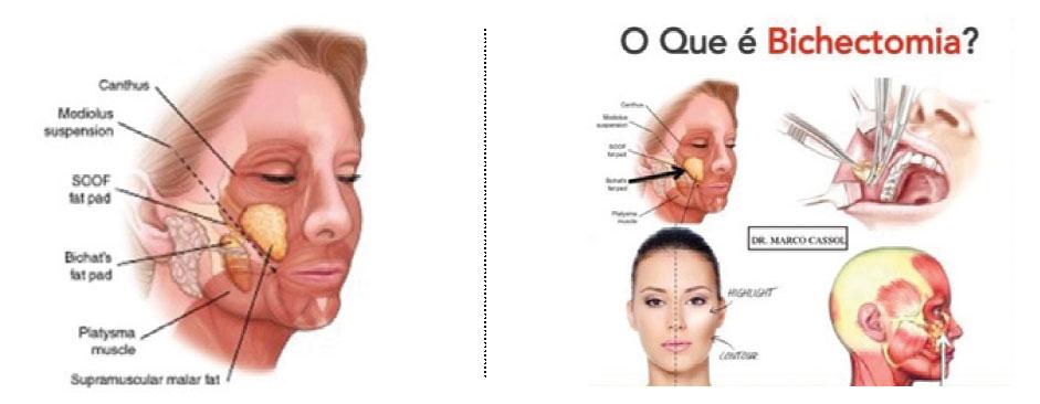Bichectomia e ou Lipoescultura da Facial