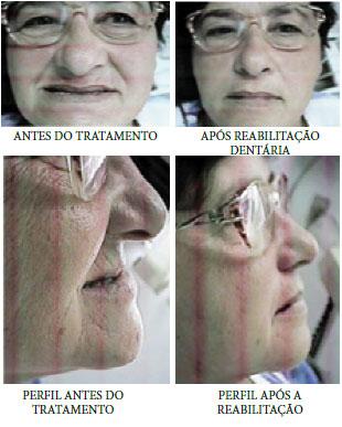 antes-depois